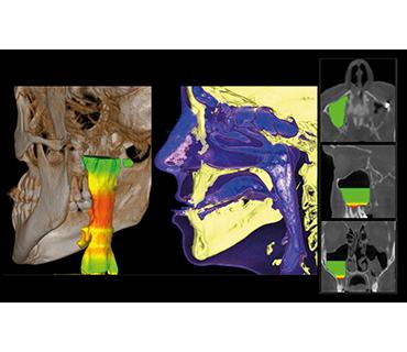 3D изследване на синуси Варна