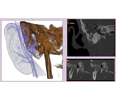 3D изследване на средно ухо Варна