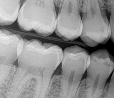 зъбни снимки варна