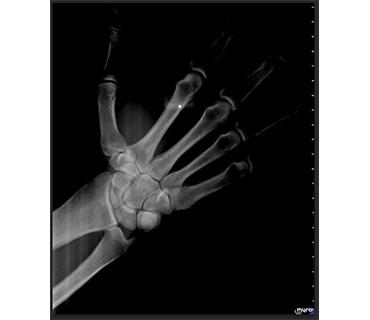 рентген варна