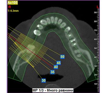 дентални 2d и 3d изследвания варна