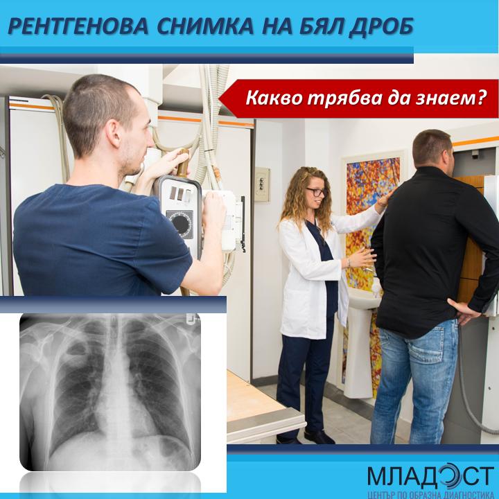 Рентгенова снимка на бял дроб