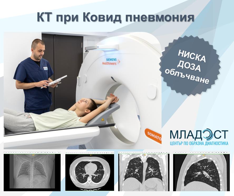 Кое изследване да изберем при Ковид пневмония и що е то Нискодозова компютърна томография?